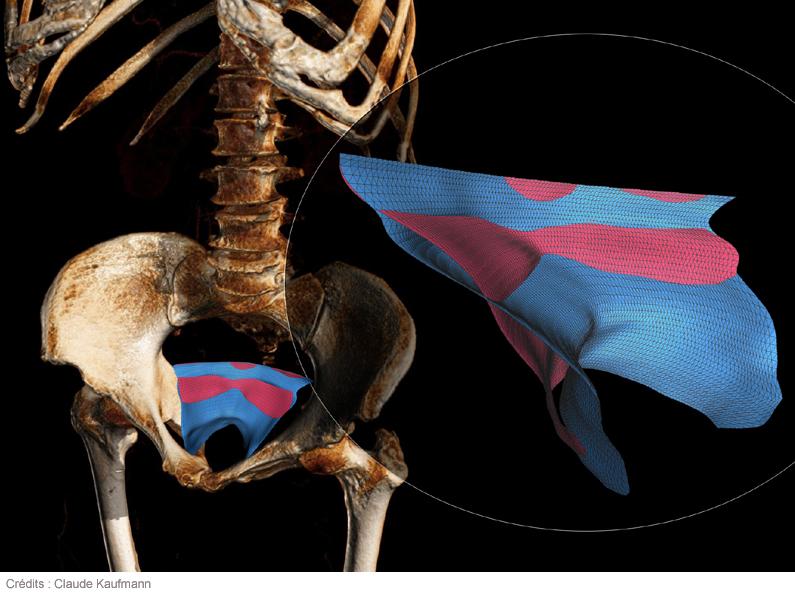 l'IRM du sexe analtranny et lesbienne sexe